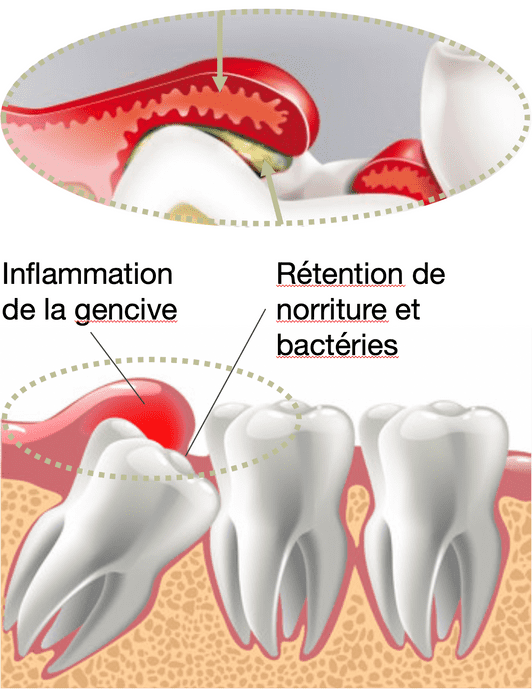 Extraction dents de sagesse - Cabinet médicaux dentaire Places St- François